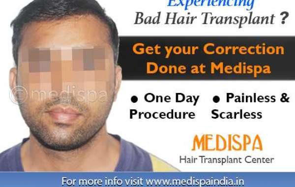 Don't Get Victim of Wrong Hair Transplant